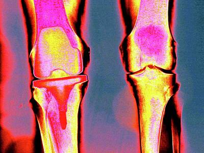 Articulation Photograph - Knee Replacement by Larry Berman