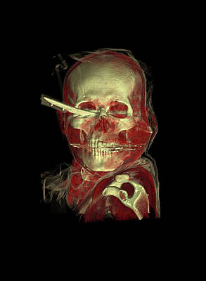 Knife Skull Injury Art Print by Anders Persson, Cmiv