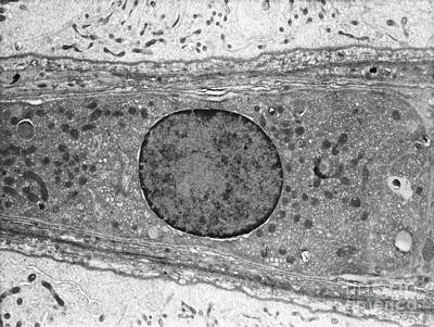 Er Photograph - Leydig Cell Tem by David M. Phillips