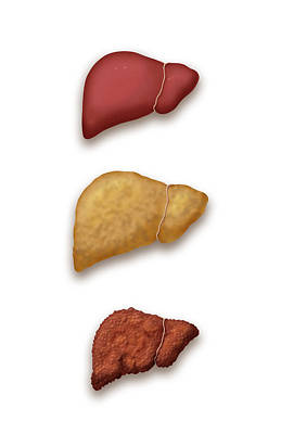 Photograph - Liver Disease Progression, Illustration by Monica Schroeder