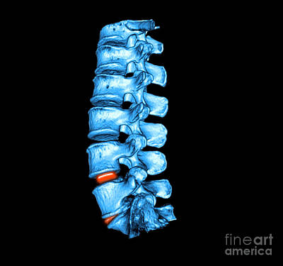 Photograph - Lumbar Spine by Living Art Enterprises LLC