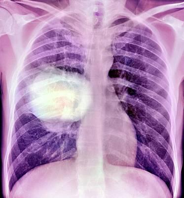 Lung Cancer Art Print by Du Cane Medical Imaging Ltd