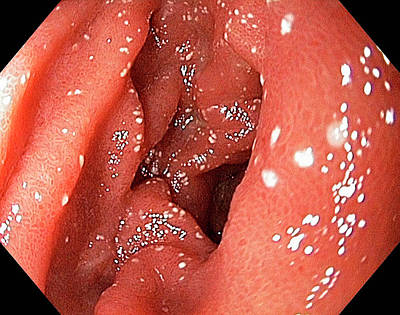 Inflamed Wall Photograph - Lymphangiectasia In The Duodenum by Gastrolab