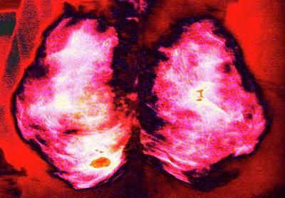 Mammogram Art Print by Larry Berman