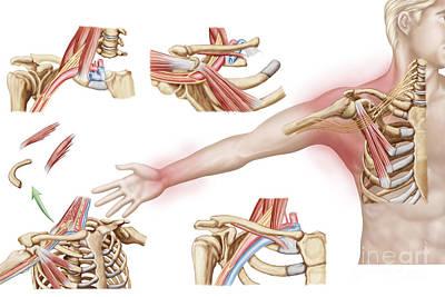Sore Digital Art - Medical Illustration Detailing Thoracic by Stocktrek Images