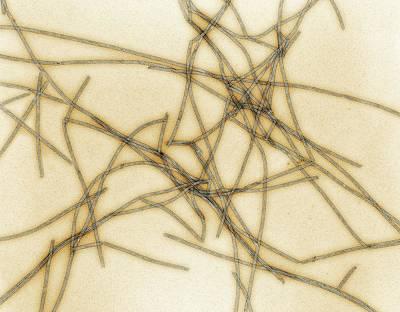 Microtubules Art Print by Thomas Deerinck, Ncmir