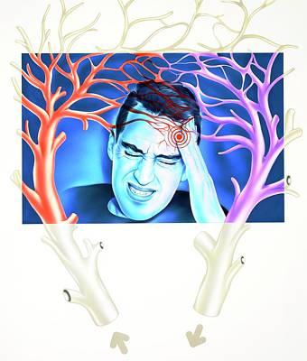 Migraine Art Print by John Bavosi