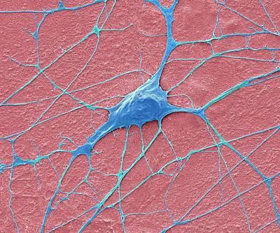 Motor Neurone Art Print by Steve Gschmeissner