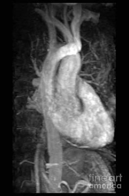 Photograph - Mra, Normal Heart by Living Art Enterprises