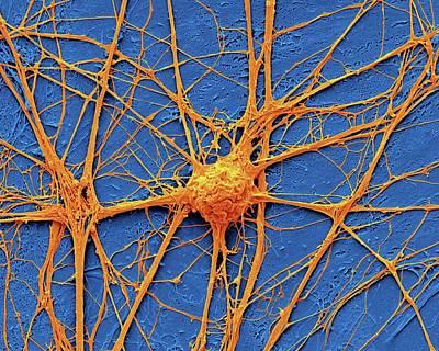 Neurone Art Print by Steve Gschmeissner