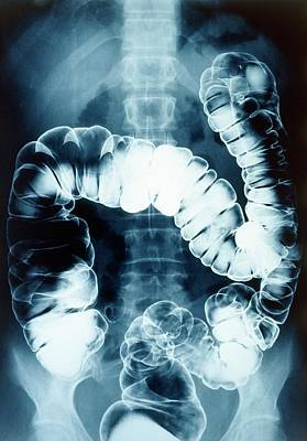 Opaque White Photograph - Normal Colon by Gjlp
