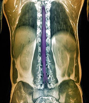 Terminal Photograph - Normal Spinal Cord by Zephyr