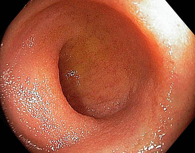 Endoscopy Photograph - Normal Terminal Ileum by Gastrolab