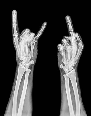 Obscene Gestures X-ray Art Print by Photostock-israel