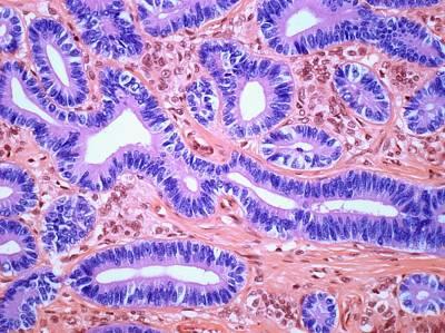 Ovarian Sertoli-leydig Tumour Art Print by Steve Gschmeissner