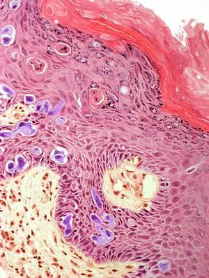 Vulva Photograph - Paget's Disease by Steve Gschmeissner
