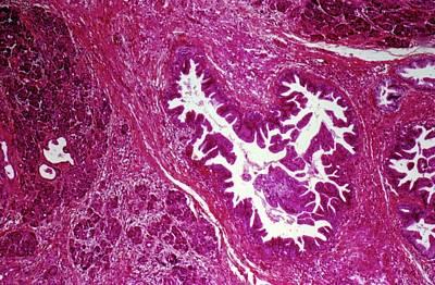Gi Photograph - Pancreatic Cancer by Cnri