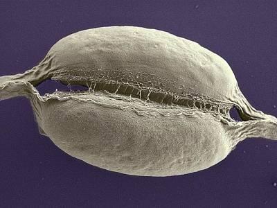 Striae Photograph - Phaeodactylum Tricornutum by Thomas Deerinck, Ncmir