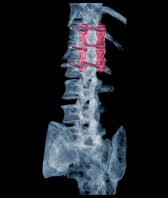 Pinned Spinal Fracture Art Print