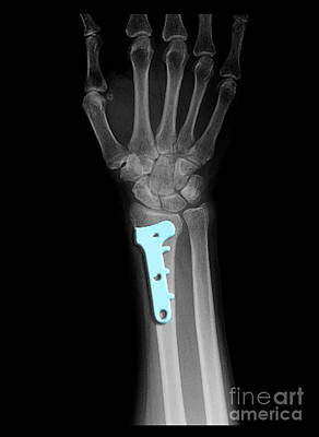 Photograph - Post Surgical Fixation Of Fracture by Living Art Enterprises