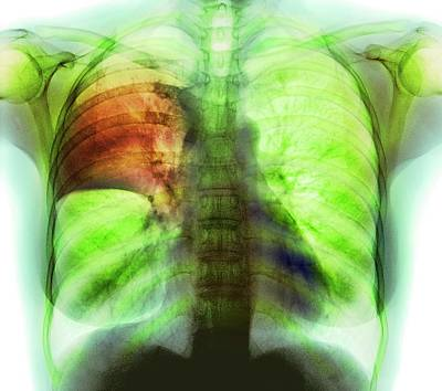Pulmonary Consolidation Art Print