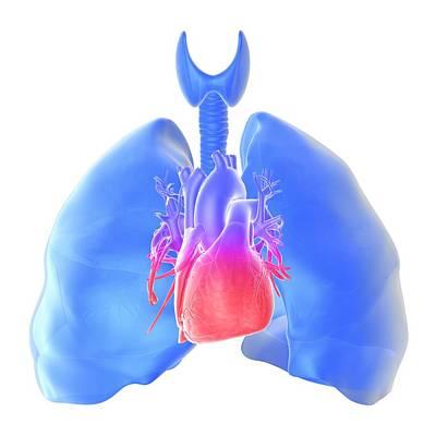 Pulmonary Hypertension, Artwork Art Print