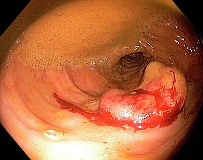 Endoscopy Photograph - Rectal Cancer by Gastrolab