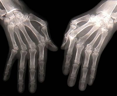 Rheumatoid Arthritis Of The Hands Art Print