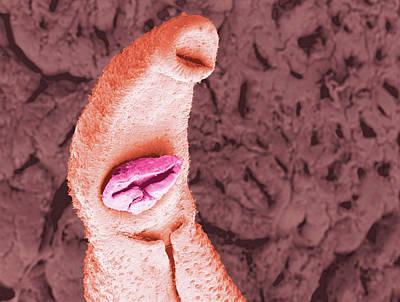 Schistosoma Flatworm Art Print