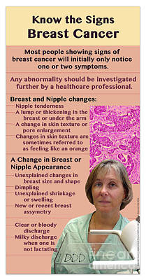 Signs Of Breast Cancer Art Print by Cmsp
