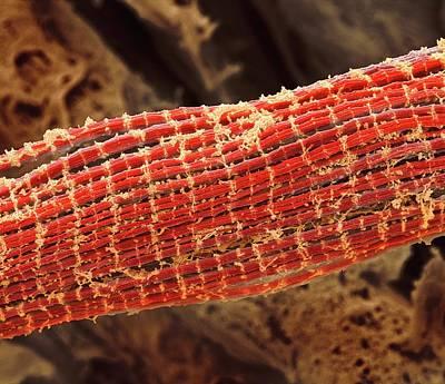 Skeletal Muscle Fibres Art Print