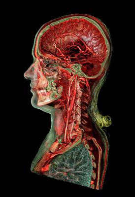 Human Head Photograph - Skull And Brain Blood Vessels by Anders Persson, Cmiv