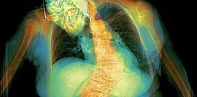 Spinal Curvature Art Print by Dr P. Marazzi
