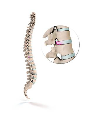Disc Photograph - Spinal Disc Prolapse by Mikkel Juul Jensen