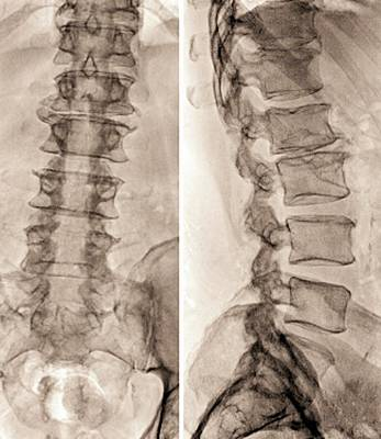64 Photograph - Spinal Stenosis After Surgery by Zephyr