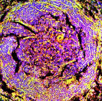 Spleen Tissue Art Print by R. Bick, B. Poindexter, Ut Medical School