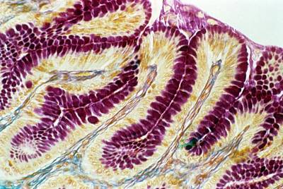 Microscopes Photograph - Stomach Lining by Cnri