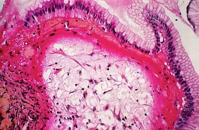 Stomach Ulcer Print by Cnri