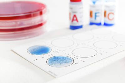 Streptococcal Grouping Test Print by Daniela Beckmann