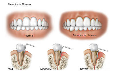 Part Of Digital Art - Three Stages Of Periodontal Disease by TriFocal Communications