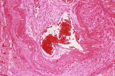 Thrombosed Artery Art Print