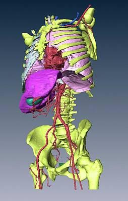 Torso Skeleton And Organs Art Print by D & L Graphics