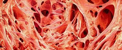 Trabeculae Carneae In The Heart Print by Susumu Nishinaga