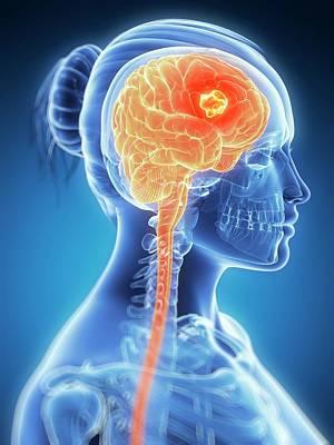 Human Brain Photograph - Tumour In The Brain by Sebastian Kaulitzki