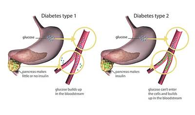 Insulin Wall Art - Photograph - Type 1 And 2 Diabetes by Gunilla Elam/science Photo Library
