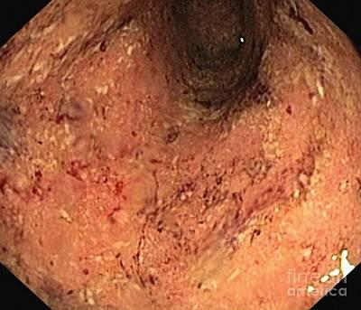 Ulcerative Colitis, Endoscopic View Art Print