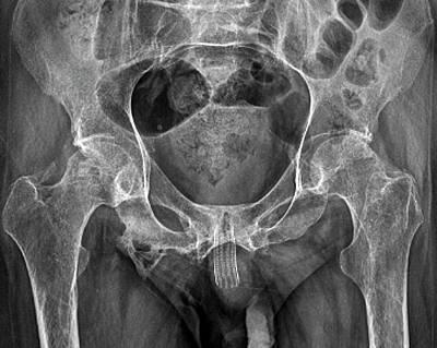 Urethral Stent Art Print