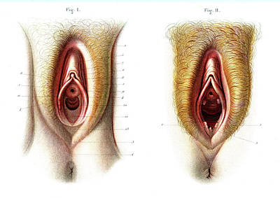 Virgin And Non-virgin Vulva Anatomy Art Print by Collection Abecasis