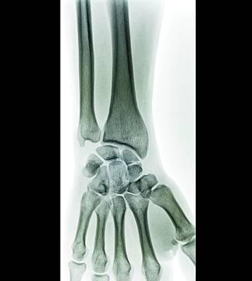 Wrist Fracture Art Print