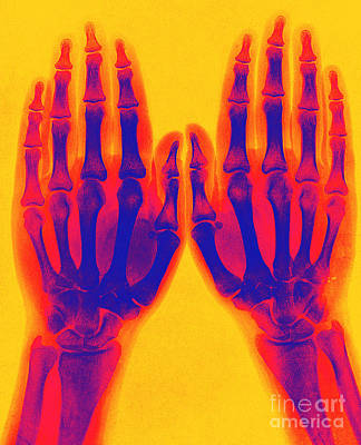 Photograph - X-ray Of Two Normal Hands 1896 by Science Source